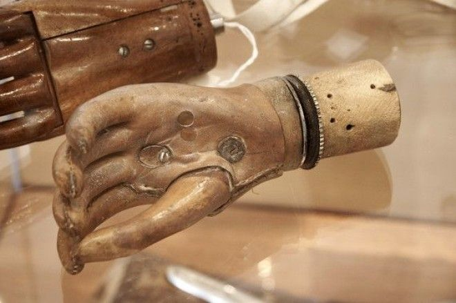 a history of prosthesis in medical surgeries This condition is often associated with many other medical  history illustration of  improvement in amputation surgery and prosthetic design came at the hands.